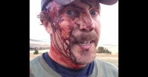 *WARNING: GRAPHIC* Man Attacked By Grizzly Bear, And Why His Pistol Couldn't Save Him